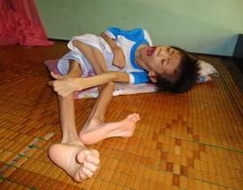 Xót xa bé gái 5 tuổi chờ chết vì chứng bệnh lạ