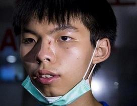 Thủ lĩnh biểu tình Joshua Wong bị hành hung