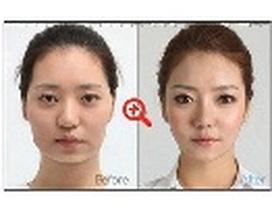 Xu hướng phẫu thuật thẩm mỹ nào đang được người Việt ưa chuộng?