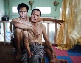 Bộ Y tế đề xuất cho phép kết hôn đồng giới