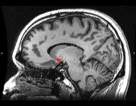 5 cách tình yêu ảnh hưởng đến não bộ