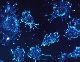 Chip nano siêu nhạy phát hiện ung thư giai đoạn sớm