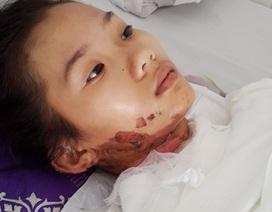 Nữ sinh lớp 10 nguy kịch vì bỏng nặng