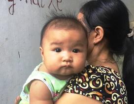 Con thơ khát sữa vì mẹ bị điện giật có nguy cơ chết não