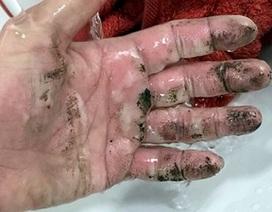 Sạc di động bất ngờ phát nổ khiến người dùng bỏng tay nghiêm trọng