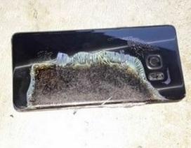 Galaxy Note7 phát nổ trên tay, một bé trai 6 tuổi bị bỏng