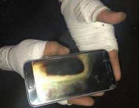 Một người đàn ông bị bỏng khá nặng do Galaxy S7 phát nổ trên tay