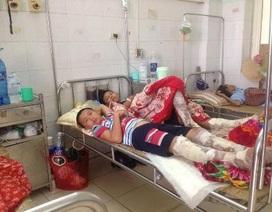 Vụ bỏng do lửa trại ở Thanh Hóa:  Bệnh nhân đều là học sinh, thiếu niên
