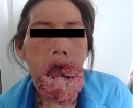 """Hy hữu ca ung thư môi dưới """"khủng"""""""