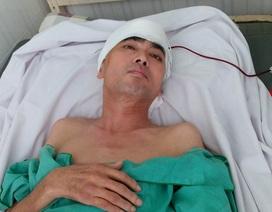 Diễn viên Nguyễn Hoàng đã vượt qua ca phẫu thuật lớn