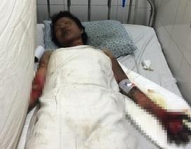Nữ nạn nhân vụ cháy nổ trong nhà trọ không người thân chăm sóc