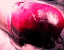 Cắt bướu máu to như trái bưởi trong gan bệnh nhi