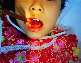 Bé gái bị đôi đũa đâm xuyên lưỡi vì ăn ở sân chơi bóng