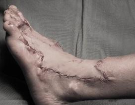 Dùng vạt da bụng cứu bàn chân bỏng nặng cho bệnh nhi