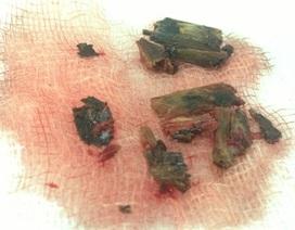 Lấy hết cành cây cao su phân hủy trong hốc mắt sau lần mổ thứ 8