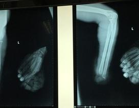 4 tiếng vi phẫu nối liền bàn tay bị cưa máy chém đứt lìa