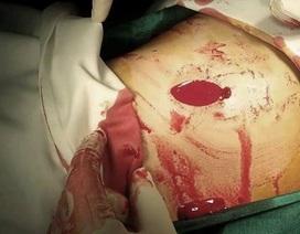 """Cứu bệnh nhân nhóm máu hiếm bị """"ma men"""" đâm rách đôi thận"""