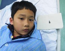 Cậu bé 7 tuổi bị đầu bút bi mắc trong phế quản