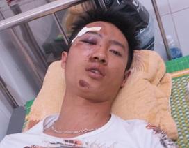 Hai thanh niên tố bị cảnh sát cơ động đưa ra chỗ vắng đánh đập