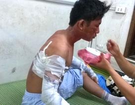 Nổ lớn tại nhà máy tinh bột sắn, 4 người bị thương