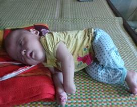 Xót xa hình hài bé 8 tháng tuổi bị hội chứng Apert hiếm gặp