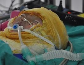 Ngã úp mặt vào nồi nước luộc gà, bé 1 tuổi bị bỏng kinh hoàng
