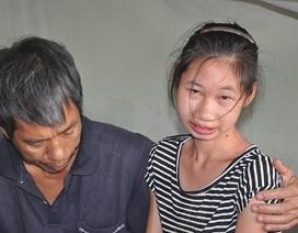 Nỗi bất hạnh của gia đình cứ đêm xuống con gái lại lên cơn động kinh