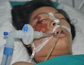 Tính mạng nguy kịch của nữ sinh bị tường đổ đè vào người trong cơn giông