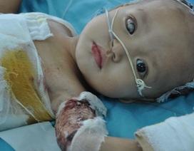 Tiếng kêu cứu của bé 2 tuổi hỏng mất 1 mắt vì ngã vào nồi canh