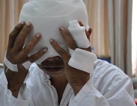 Bị gấu tấn công, người đàn ông dân tộc Mông mất cả 2 mắt