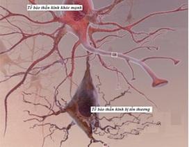 Đau do biến chứng thần kinh đái tháo đường