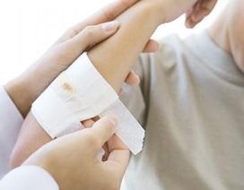 Vết thương có mau lành khi rắc bột kháng sinh không?