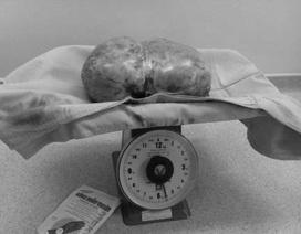 Lấy thành công khối u buồng trứng nặng 5kg
