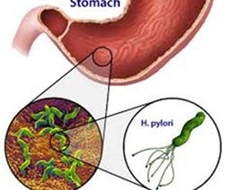 Viêm loét dạ dày có dễ gây ung thư?