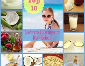 10 phương thuốc tự nhiên chữa bỏng nắng