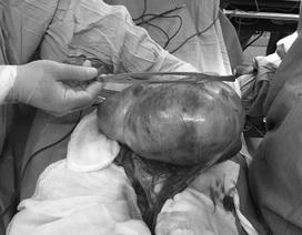 Bóc thành công khối u buồng trứng nặng 3,5kg cho trẻ 13 tuổi