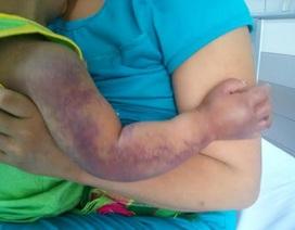 Bé 2 tuổi có nguy cơ mất cánh tay do rắn độc cắn