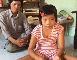 """Cuộc sống như """"hình nộm"""" của bé gái mắc bệnh lạ khiến chân tay co rút"""
