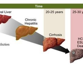 Diệt vi rút viêm gan để hạn chế ung thư gan