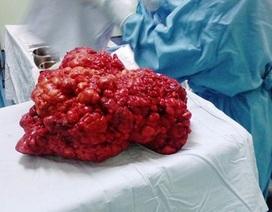 Bóc tách khối bướu 4,3kg trong bụng bé 11 tuổi