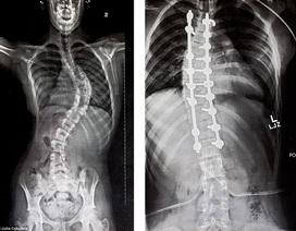 4 năm liền mang nẹp để điều trị cong vẹo cột sống