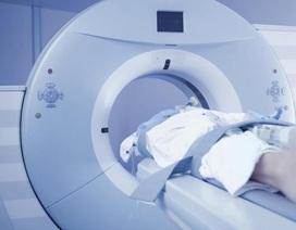 Chụp cắt lớp CT khiến tế bào cơ thể bị tổn thương