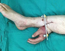 Trung Quốc: Phẫu thuật ghép bàn tay đứt lìa vào chân để cứu tay