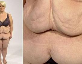 """Người phụ nữ có thân hình """"bèo nhèo"""" vì giảm cân quá đột ngột"""
