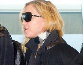 Madonna lộ.... răng vàng