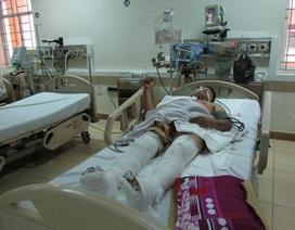 Sốc đa chấn thương nghiêm trọng khi đang sửa máy trộn bê tông