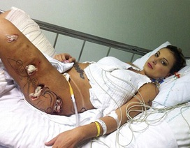 """Hình ảnh đáng sợ của người đẹp Brazil vì """"hậu họa"""" phẫu thuật thẩm mỹ"""