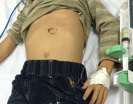 Bé trai 7 tuổi vỡ tụy vì ngã xe đạp