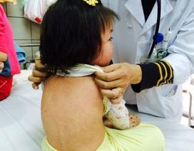 Sởi bùng phát ở châu Âu, Tổ chức Y tế thế giới kêu gọi tăng cường tiêm chủng