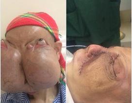 """""""Bóc"""" thành công 2 khối u khổng lồ gây biến dạng mặt"""